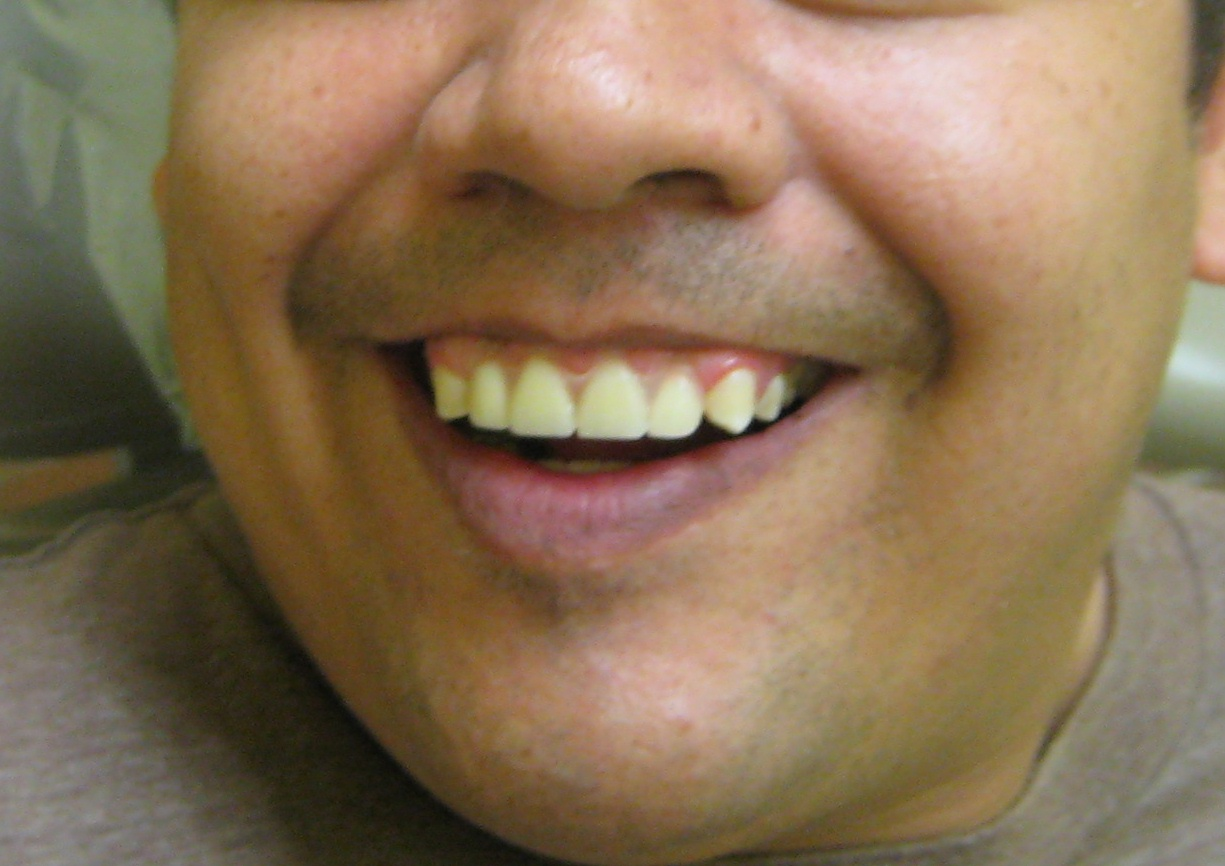 tri county oral facial surgeons lewistown difficult