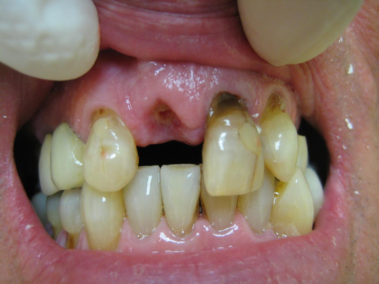 Fixed Non Removable Bridges General And Cosmetic Dentist