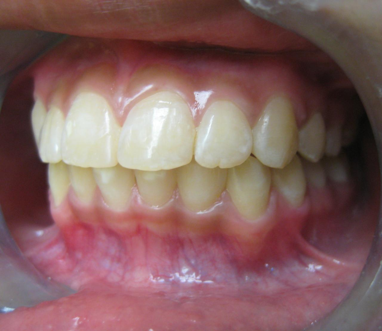 Orthodontics Gallery General And Cosmetic Dentist